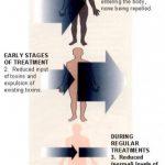Healing Crisis, Healing Events